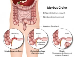Morbus Crohn, Darmerkrankung Symptome